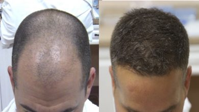 Photo of Are The Different Methods of Hair Transplant in Delhi?