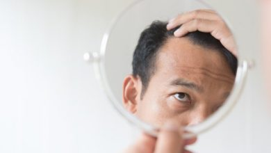Photo of Improve your Appearance by removing Hair Loss with Hair Transplantation in Turkey