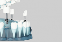 Photo of Things You Need to Know about Dental Implant!