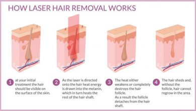 Photo of How Safe Is Laser Hair Removal & How It Works?