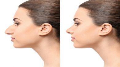 Photo of Does ENT surgeon perform a rhinoplasty nose surgery?