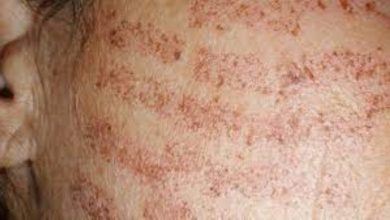 Photo of How Common are Laser Hair Removal Burns?