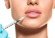 Photo of Important Facts About Lip Fillers Every Woman Should Know