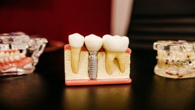 Photo of 5 Reasons to Choose Dental Implants Over Dentures