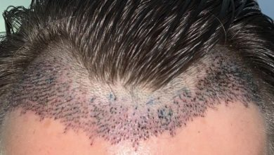 Photo of How to Deal With Shock Loss after an FUE Hair Transplant?