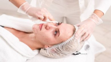 Photo of Things to Know Before Getting Laser Treatment for Your Acne Scars