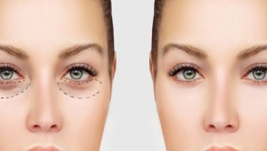 Photo of Get Rid Of Tired Eye Look with Blepharoplasty