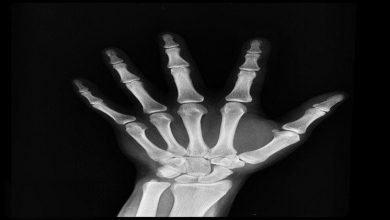 Photo of Understanding the Top 6 Uses of X-Rays