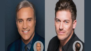 Photo of What is the Best Place to Buy a Men's Hair Replacement System?
