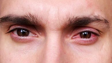 Photo of What is Photokeratitis? Sunburned Eyes