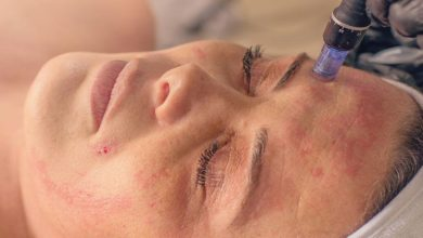 Photo of How Does Micro-Needling Work?