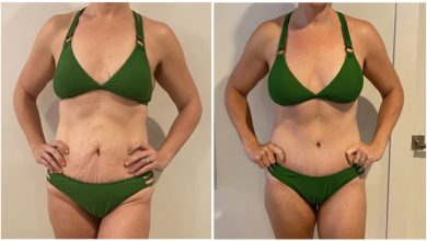 Photo of What Can You Expect From Your Mommy Makeover Recovery?