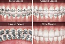 Photo of What is orthodontic treatment? How many types are there?